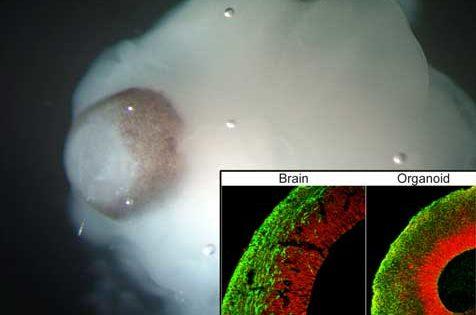 ¿Células madre para estudiar el Alzheimer?