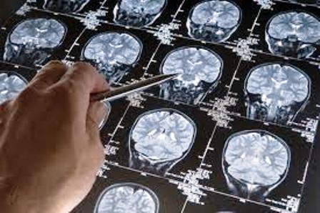 Los ácidos omega-3 retrasan el envejecimiento del cerebro