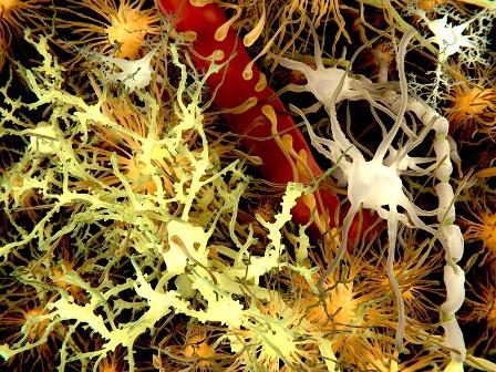 ¿Podría la enfermedad de Alzheimer ser una especie de sindróme de Down adquirido? Este interrogante lo p...