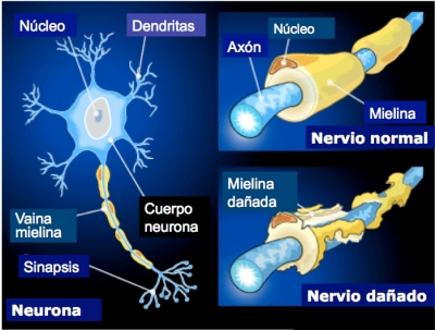 Prometedor hallazgo en Esclerosis Múltiple