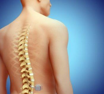 Neuromoduladores: engañando al cerebro para combatir el dolor