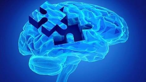 Esclerosis múltiple: «Perder tiempo es perder cerebro»