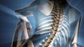 El dolor de espalda nos mata, literalmente