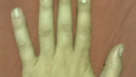 Un hombre subasta la amputación de su dedo meñique en internet