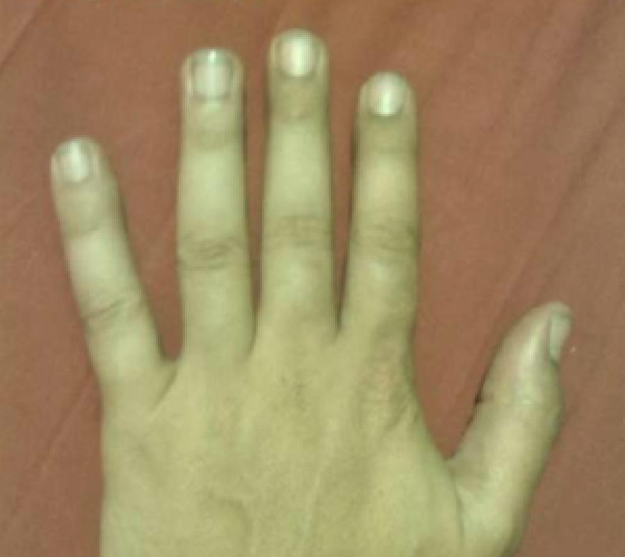 Un hombre subasta la amputación de su dedo meñique en internet ...