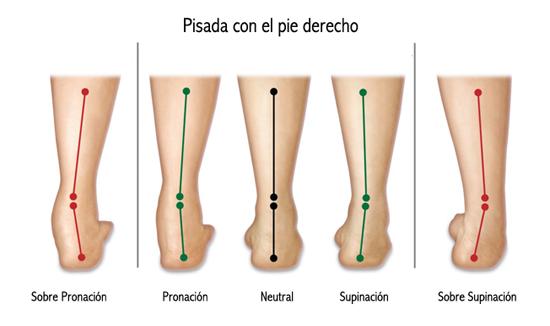 38868dbf938 La más común en los corredores es la pronación