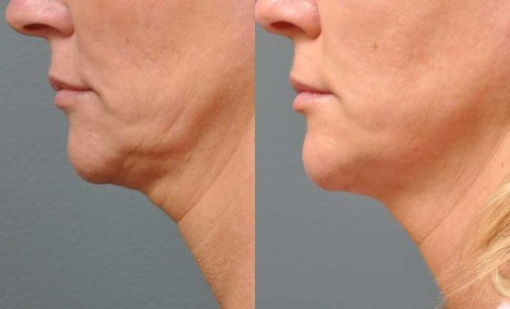 ultherapy-before-and-after-photos-1