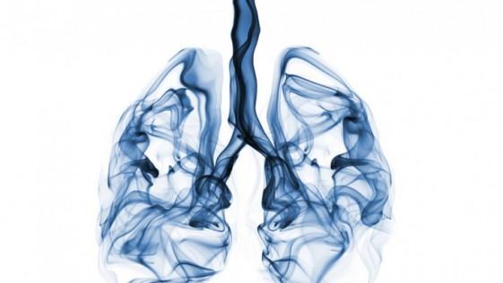 Cómo un TAC a tiempo puede curar el 92% de los casos de cáncer de pulmón