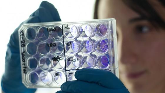 Amiloidosis, una enfermedad que deteriora los órganos vitales