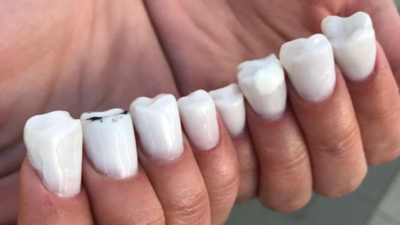 Las uñas con forma de dientes se convierten en la última moda