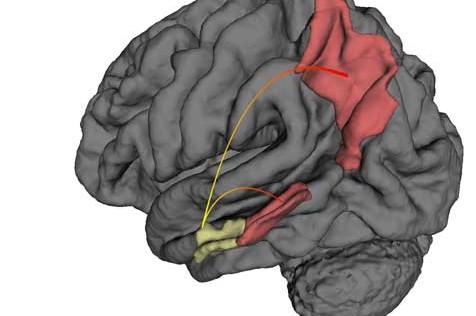 Visualizan los primeros cambios del cerebro con Alzheimer