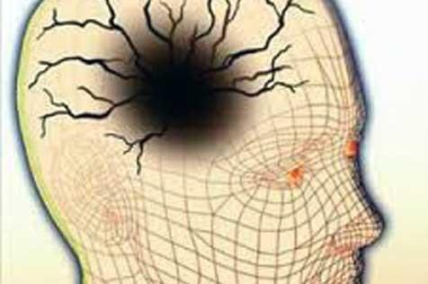 En el cerebro, después de la calma viene la tempestad… en forma de jaqueca