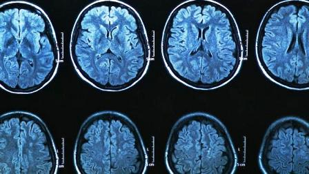 Diez hitos en la lucha contra el Parkinson