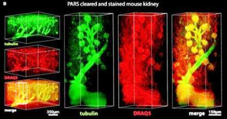 De los cerebros transparentes a los cuerpos transparentes