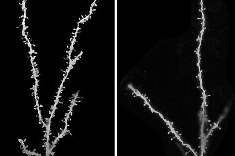 El cerebro de las personas con autismo tiene un exceso de sinapsis