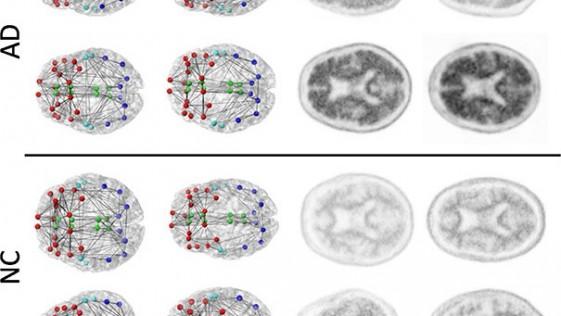 Alzheimer: el cambio en las conexiones neuronales, posible marcador
