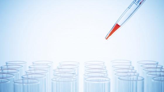 Un análisis de sangre para detectar la depresión