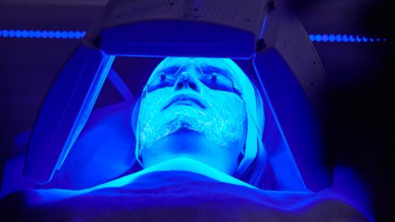 Adiós al acné ( y las arrugas) con la terapia biofotónica